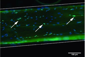 Bone marrow-derived stem cells seeded on a single microthread.